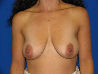 40 year old female being treated for small sagging breasts before 1355468