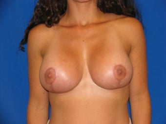 40 year old female being treated for small sagging breasts after 1355468
