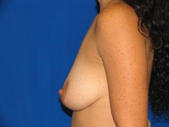 40 year old female being treated for small sagging breasts 1355468