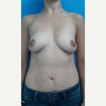 25-34 year old woman treated with Breast Lift with Implants before 3009202