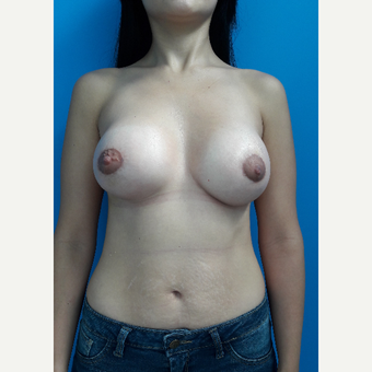 25-34 year old woman treated with Breast Lift with Implants after 3009202