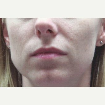 Subtle Lip Enhancement Using Juvederm Dermal Filler for Lip Augmentation before 2046986