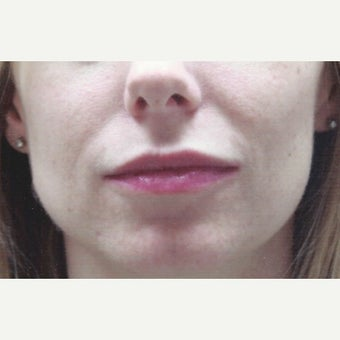 Subtle Lip Enhancement Using Juvederm Dermal Filler for Lip Augmentation after 2046986
