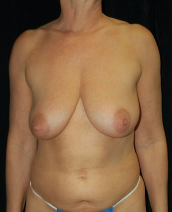 Full Breast Lift Case before 731324