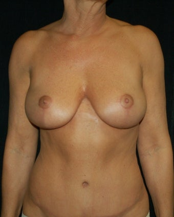 Full Breast Lift Case after 731324
