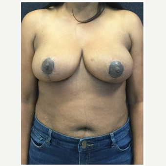 45-54 year old woman treated with Breast Reduction after 3219505