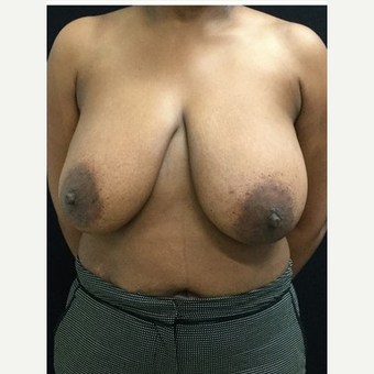 45-54 year old woman treated with Breast Reduction before 3219505