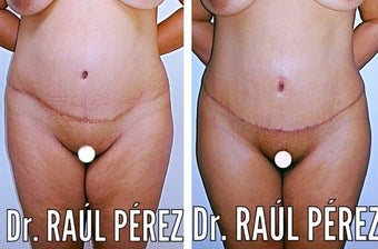 35-44 year old woman treated with Tummy Tuck Revision before 2084623