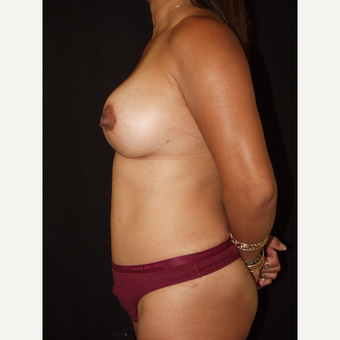 25-34 year old woman treated with Breast Lift with Implants after 3846513