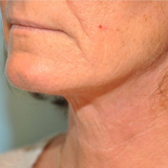55-64 year old woman treated with Neck Lift after 2047567
