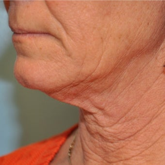 55-64 year old woman treated with Neck Lift before 2047567