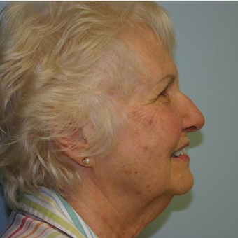 78 year old woman treated with Facelift before 3442689