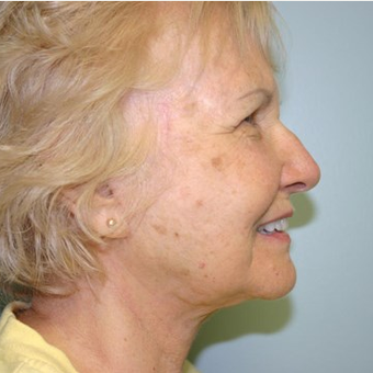 78 year old woman treated with Facelift after 3442689