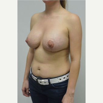 25-34 year old woman treated with Breast Lift with Implants after 3763073
