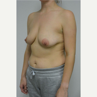 25-34 year old woman treated with Breast Lift with Implants before 3763073