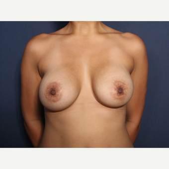 25-34 year old woman treated with Breast Augmentation (view 1 of 2) after 3129709