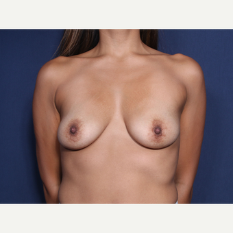 25-34 year old woman treated with Breast Augmentation (view 1 of 2) before 3129709