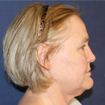 55-64 year old woman treated with Facelift before 3714678