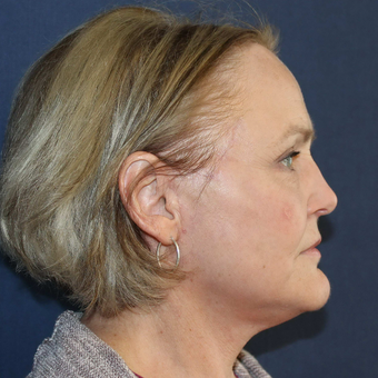 55-64 year old woman treated with Facelift after 3714678