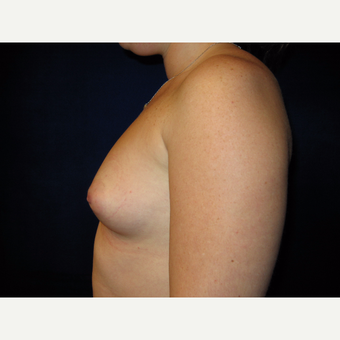 25-34 year old woman treated with Breast Implants before 3727133