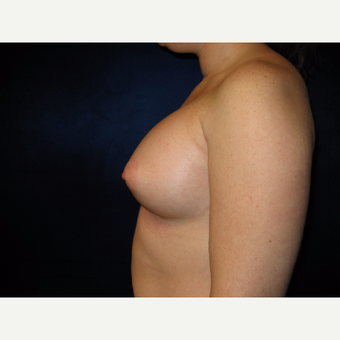 25-34 year old woman treated with Breast Implants after 3727133