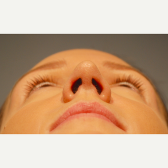 18-24 year old woman treated with Rhinoplasty after 3417503