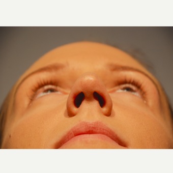 18-24 year old woman treated with Rhinoplasty before 3417503