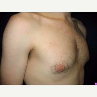 18-24 year old man treated with Male Breast Reduction after 3711758