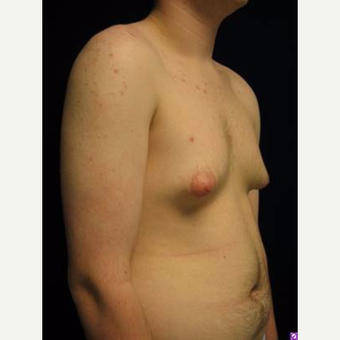 18-24 year old man treated with Male Breast Reduction before 3711758