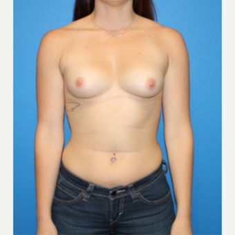 25-34 year old woman treated with Breast Augmentation before 3281414
