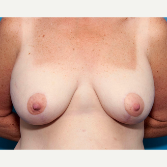 46 year old woman treated with Breast Lift with Implants after 3137453