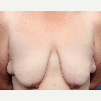 46 year old woman treated with Breast Lift with Implants before 3137453