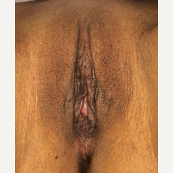 25-34 year old woman treated with Labiaplasty after 3055908
