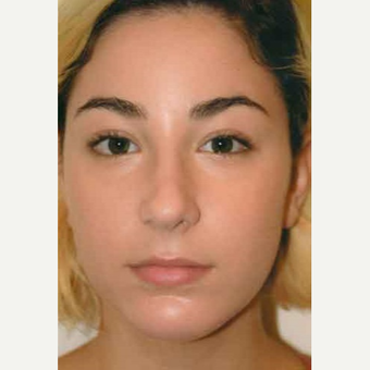 18-24 year old woman treated with Rhinoplasty after 3406133