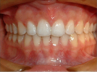 Invisalign after 890230
