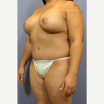 35-44 year old woman treated with Mommy Makeover after 3421649