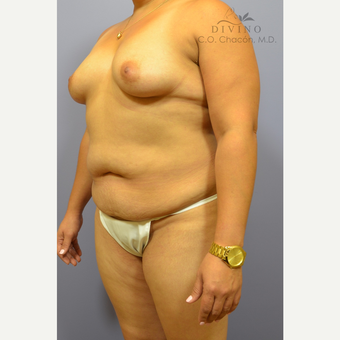 35-44 year old woman treated with Mommy Makeover before 3421649