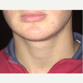 18-24 year old man treated with Chin Liposuction after 3719106