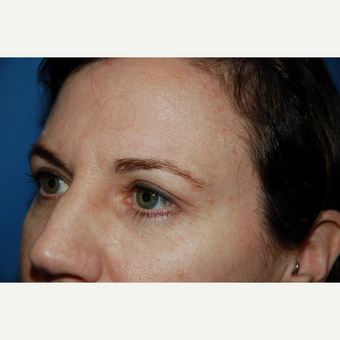 35-44 year old woman treated with Eyelid Surgery after 3782047