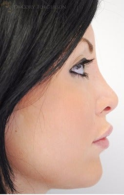 18-24 year old woman treated with Rhinoplasty after 3258662
