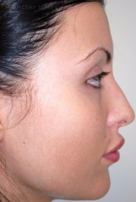 18-24 year old woman treated with Rhinoplasty before 3258662