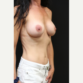 42 year old woman treated with Mentor Breast Implants before 3070975