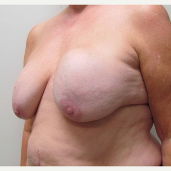 Breast Implant Revision for this 58 Year Old Woman before 3043296