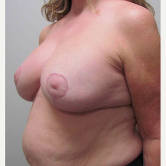 Breast Implant Revision for this 58 Year Old Woman after 3043296