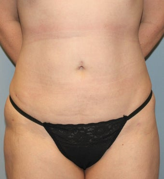 35-44 year old woman treated with Liposuction after 3589571
