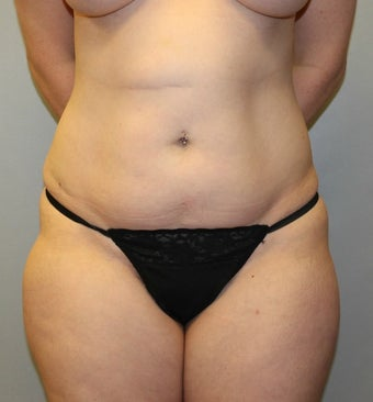 35-44 year old woman treated with Liposuction before 3589571
