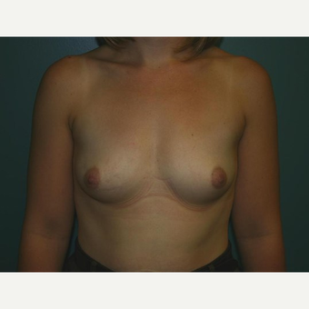 Breast Augmentation before 3560737