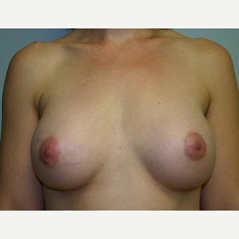 Breast Augmentation after 3560737