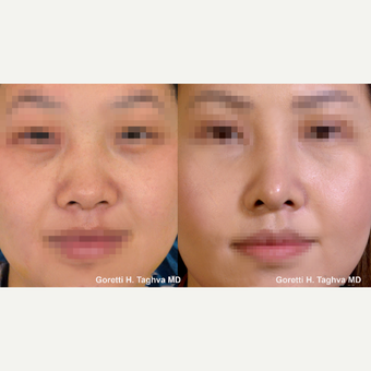 25-34 year old woman treated with DC-F (diced cartilage-fascia) Asian Rhinoplasty before 3038376