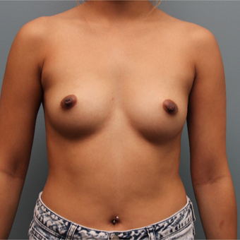 27 year old woman treated with Breast Augmentation before 3390813